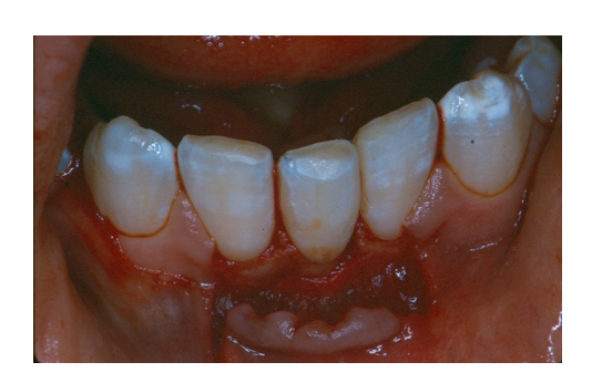 Autogenous Tooth Transplantation:  Five -Year Re-Evaluation of a Vital Transplant, Case Study Example